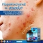 Auswelllife Liver Tonic 35,000 mg อาหารเสริมล้างตับ ขับสารพิษ thumbnail 6
