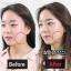โซมี่เพียว คูลลิ่ง ZOMYPURE ผลิตและนำเข้าจากเกาหลี thumbnail 7