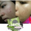 สบู่ดีท็อกซ์ Detox & Anti Acne By Ami Skincare thumbnail 6