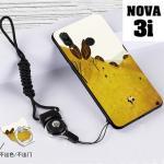 เคส Huawei Nova 3i เคสซิลิโคนลายการ์ตูน น่ารักๆ หลายลาย พร้อมแหวนจับมือถือลายเดียวกับเคส แบบที่ 12
