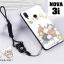เคส Huawei Nova 3i เคสซิลิโคนลายการ์ตูน น่ารักๆ หลายลาย พร้อมแหวนจับมือถือลายเดียวกับเคส thumbnail 15