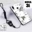 เคส Huawei Nova 3i เคสซิลิโคนลายการ์ตูน น่ารักๆ หลายลาย พร้อมแหวนจับมือถือลายเดียวกับเคส thumbnail 10