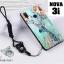 เคส Huawei Nova 3i เคสซิลิโคนลายการ์ตูน น่ารักๆ หลายลาย พร้อมแหวนจับมือถือลายเดียวกับเคส thumbnail 17