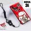 เคส Huawei Nova 3i เคสซิลิโคนลายการ์ตูน น่ารักๆ หลายลาย พร้อมแหวนจับมือถือลายเดียวกับเคส thumbnail 25