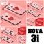 เคส Huawei Nova 3i เคสขอบซิลิโคน ลายการ์ตูน ลายกราฟฟิกน่ารักๆ มีแผ่นฟิล์มกระจกที่หลังเคส ทำให้เคสเงาๆ สวยๆ thumbnail 1
