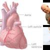""""""" โรคหัวใจ """" เป็นมาอย่างไร ?"""